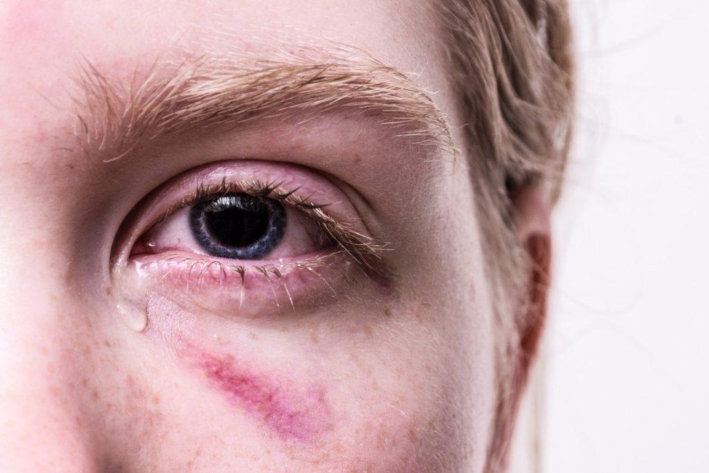 Psychoterapie - Trauma Bewältigung bei Swetlana Ruhl Vechta, Lutten, Goldenstedt und Umgebung